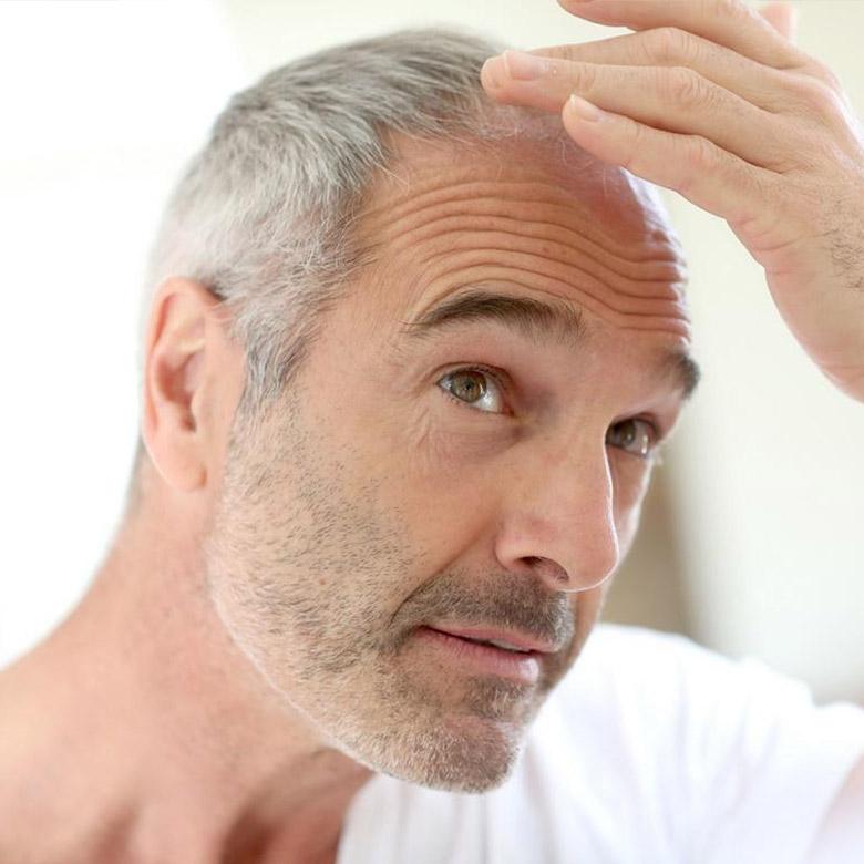 greffe-cheveux-abidi