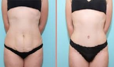 chirurgie esthétique du ventre photos