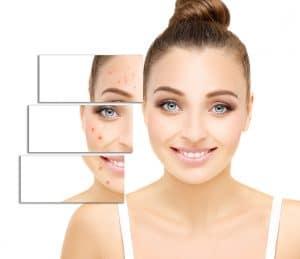 laser visage tunisie