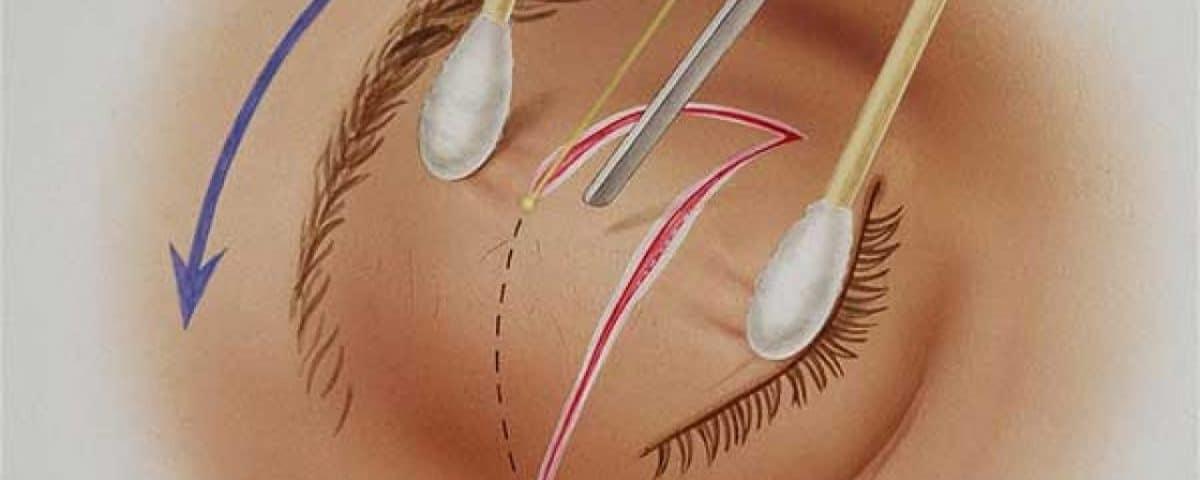 blepharoplastie laser co2