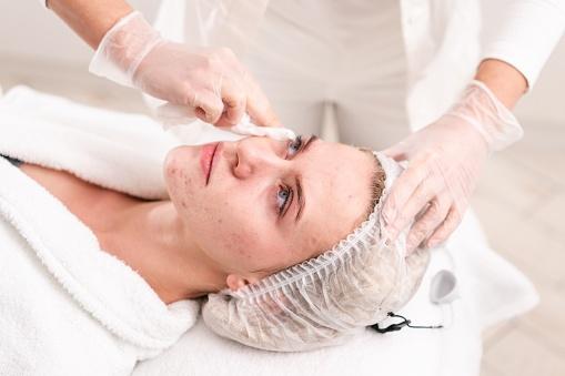 Photothérapie visage prix