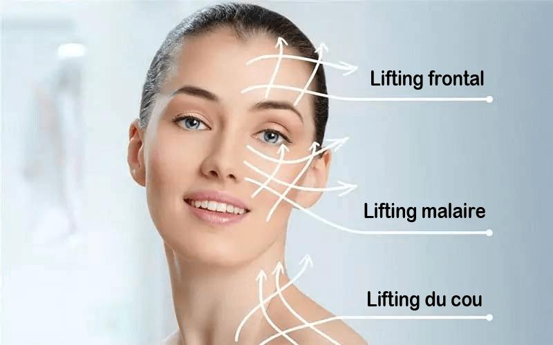 lifting malaire
