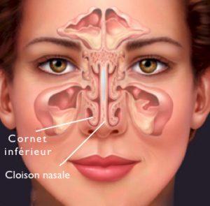 chirurgie cornet inférieur