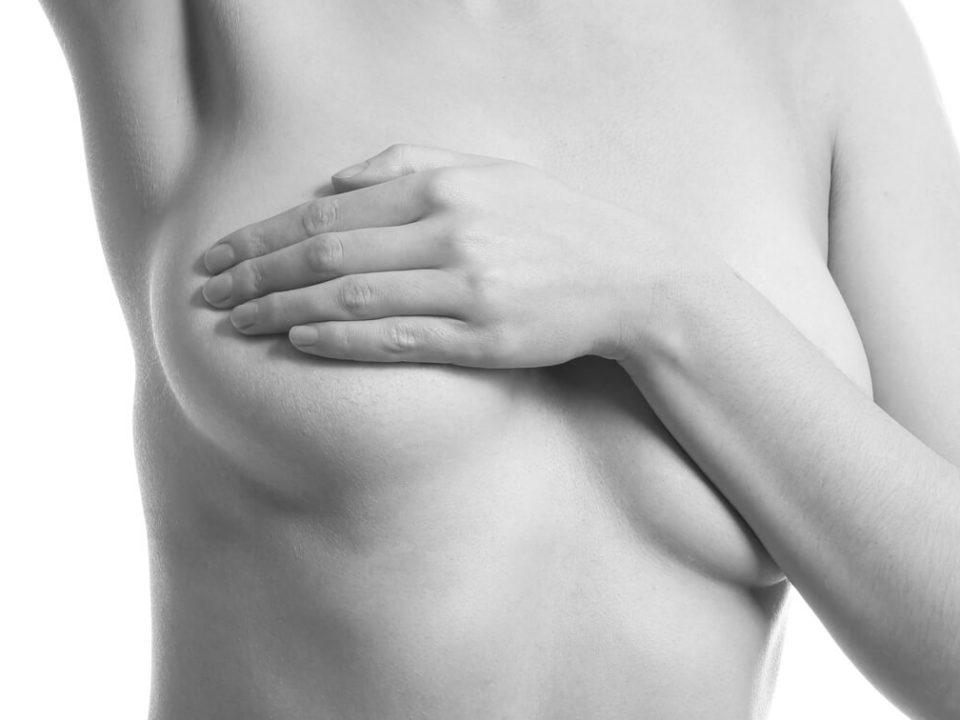 lymphome anaplasique mammaire
