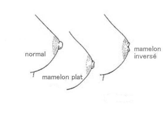 mamelon ombilique