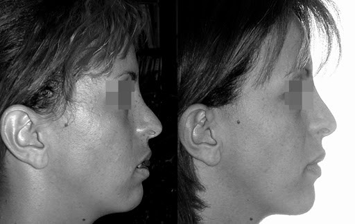 rhinoplastie secondaire