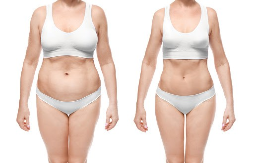 mega liposuccion